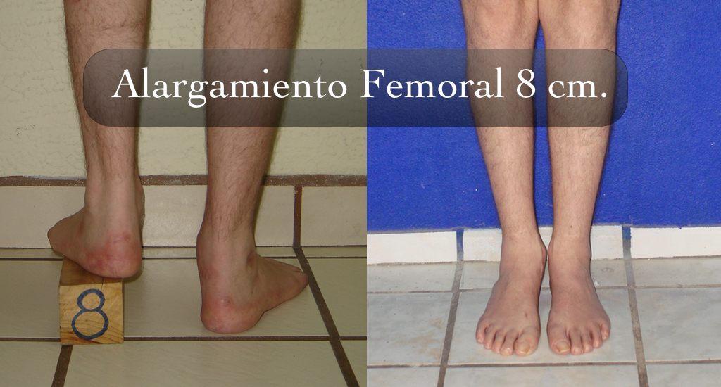 alargamiento_cut
